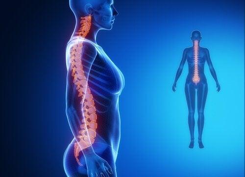 근육 수축은 허리와 목 통증을 유발한다