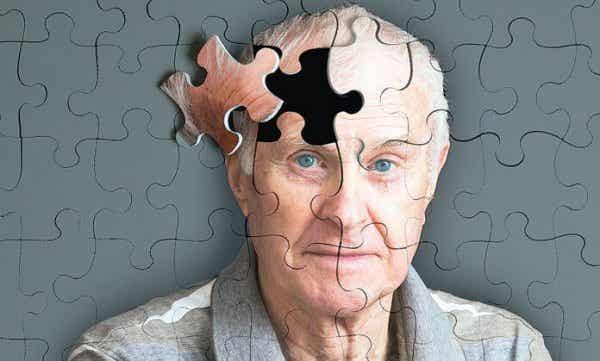 알츠하이머의 5가지 징후
