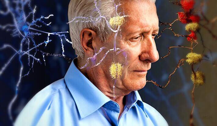 알츠하이머의 징후