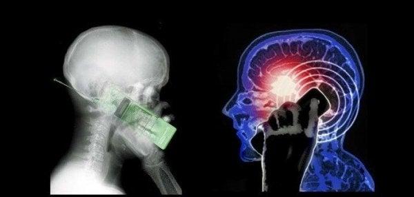 전자 기기는 뇌에 어떤 영향을 미칠까?