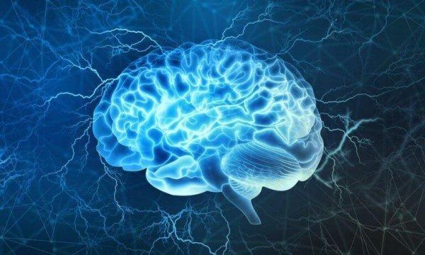 뇌의 그림