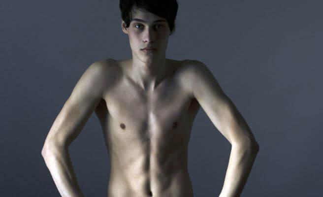 섭식장애를 앓는 남성