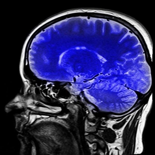 인간의 뇌