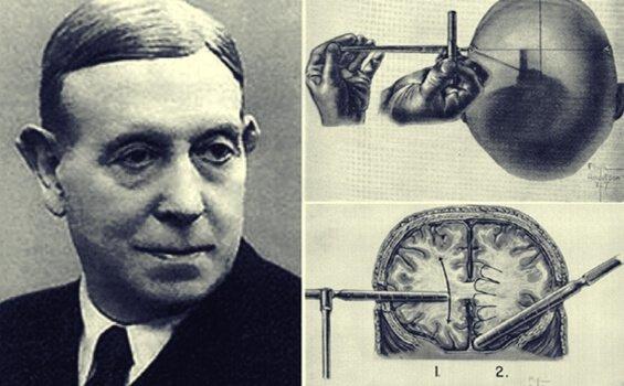 뇌엽전리술은 무엇인가: 에가스 모니스 이야기