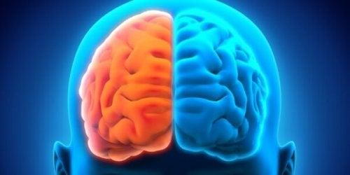 두뇌 분리 증후군은 좌반구가 하는 일을 우반구가 모른다
