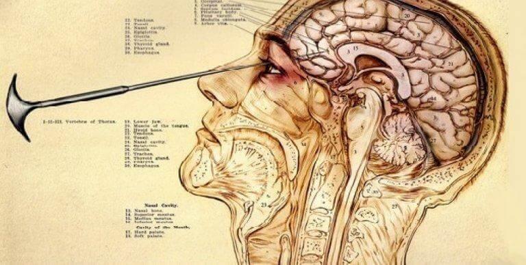 뇌엽전리술