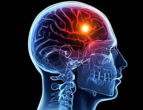 뇌졸중의 원인과 유형