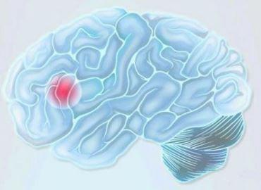 출혈성 뇌졸중
