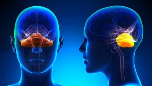 운동 실조증 소뇌