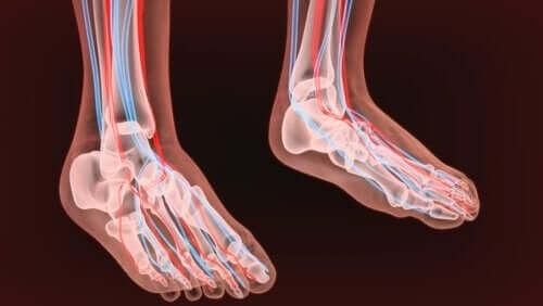 말초신경병증 - 두 발의 뼈