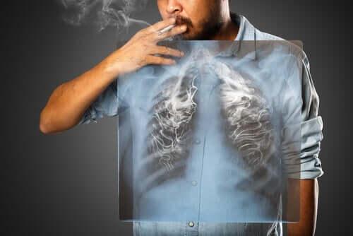 흡연은 COVID-19 합병증의 위험을 증가시킬까?