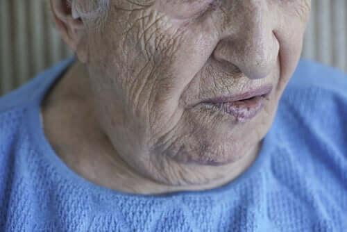 안면 마비: 원인 및 치료
