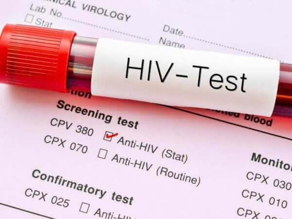 세계 에이즈의 날: 방심하지 않는 것의 중요성