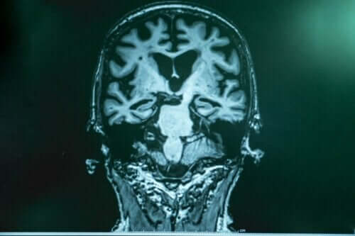 뇌파 자극에 관한 추가 연구
