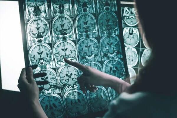 알츠하이머병 환자를 위한 뇌파 자극
