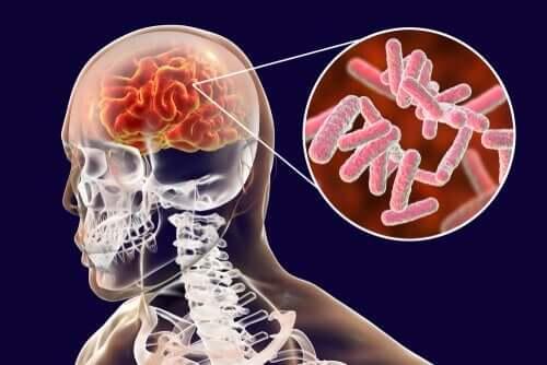 뇌 감염과 그 증상의 분류